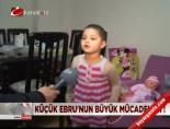 Küçük Ebru'nun büyük mücadelesi