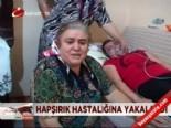 Hapşırık hastalığına yakalandı online video izle
