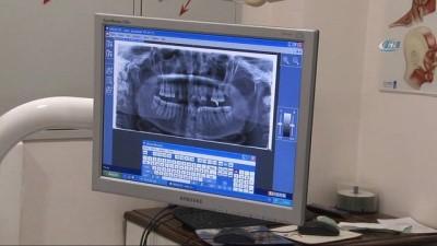 Operasyon var demediler Kırıkhan'a diş tedavisine geldiler